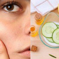 Beauté : mon ennemi l'acné